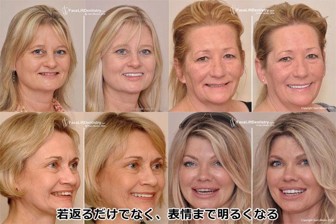 歯のホワイトニング ビフォーアフター